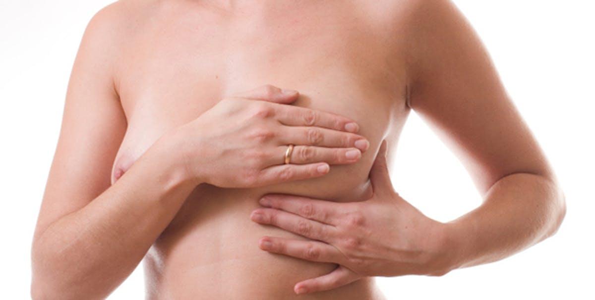 femme opérée du sein